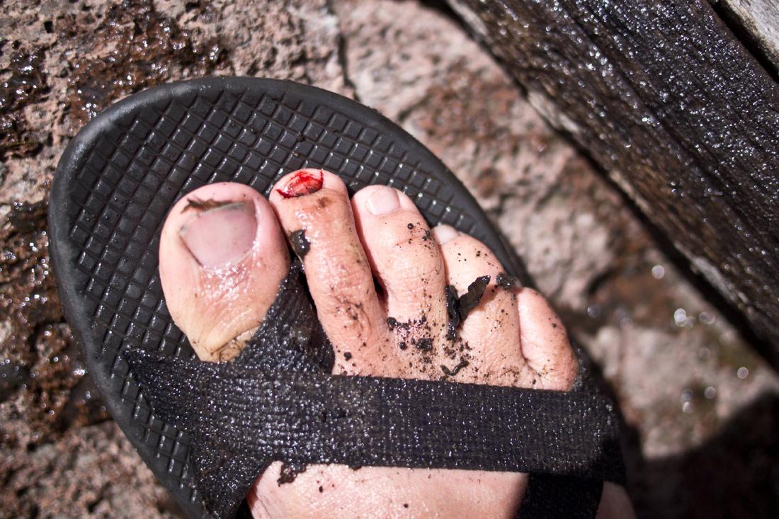 toenail-to-nonail
